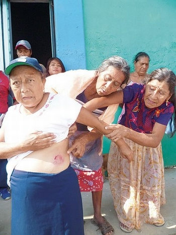 """""""El Programa de Naciones Unidas para el Desarrollo (PNUD) destacó en su informe 2010 que, a pesar de las medidas gubernamentales, los indígenas mexicanos sufren mayores desigualdades que cualquier otro grupo"""